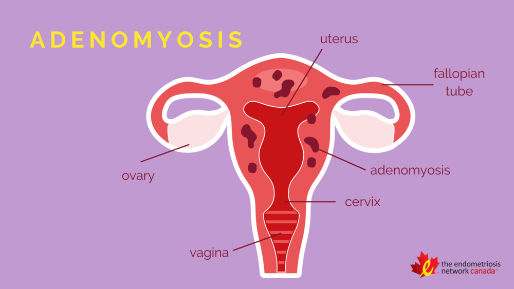 April is Adenomyosis Awareness Month — The Endometriosis Network Canada